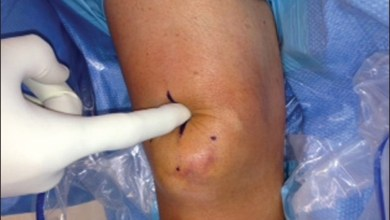 Photo of Minimally invasive tendon repair technique supports knee movement sooner after surgery