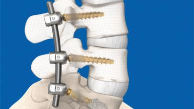 Photo of SIGNUS Medizintechnik receives 510(k) clearance for posterior pedicle screw system DIPLOMAT®