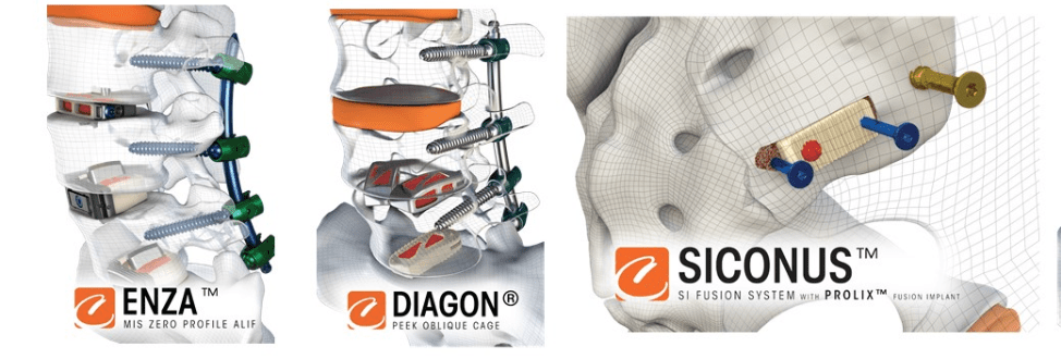 Camber Spine Technologies Announces 510(k) Clearance For Their Siconus(TM) SI Joint Fixation System