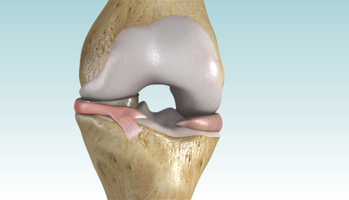Arlington Orthopedic Associates, P.A. Performs First Meniscus Replacements in Texas with NUsurface® Meniscus Implant