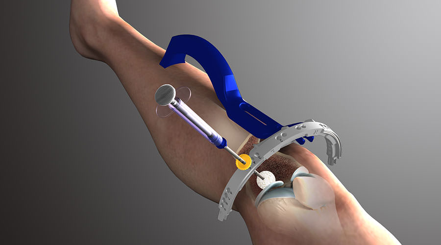 Zimmer Biomet Announces the International Release of the Innovative Subchondroplasty® Procedure