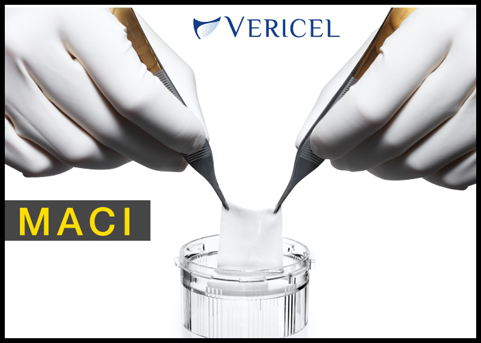 Vericel Announces First MACI Implant in the United States for the Treatment of Symptomatic Cartilage Defects of the Knee