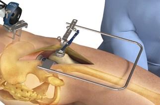 Intellijoint Surgical® Announces intellijoint HIP® Anterior Application FDA Clearance