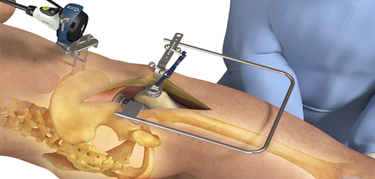 Intellijoint Surgical® Announces intellijoint HIP® Anterior Application FDA Clearance