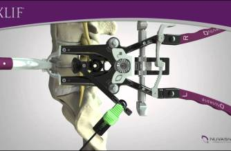 NuVasive announces new evidence-based recommendation released from NICE (U.K.) for Lateral Interbody Fusion