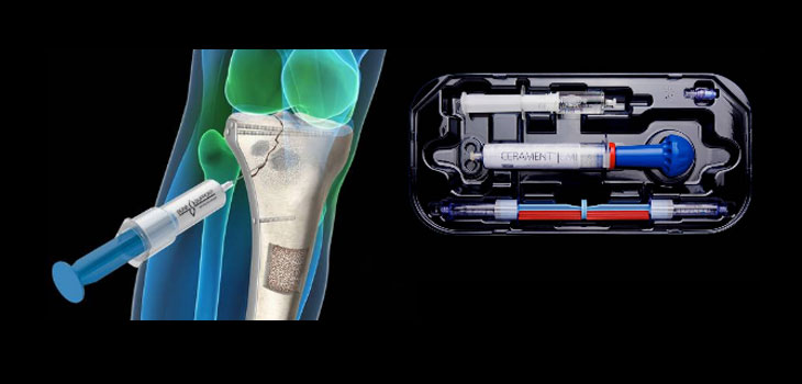 BoneSupport TM extends U.S. Distribution agreement for Cerament TM Bone Void Filler