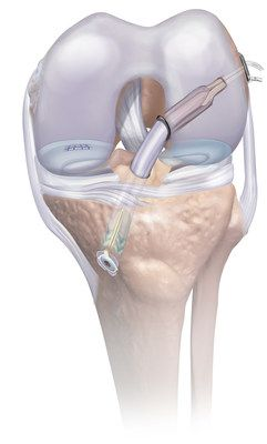 Mitek Sports Medicine Introduces Comprehensive Knee Arthroscopy Platform for ACL and Meniscal Repair
