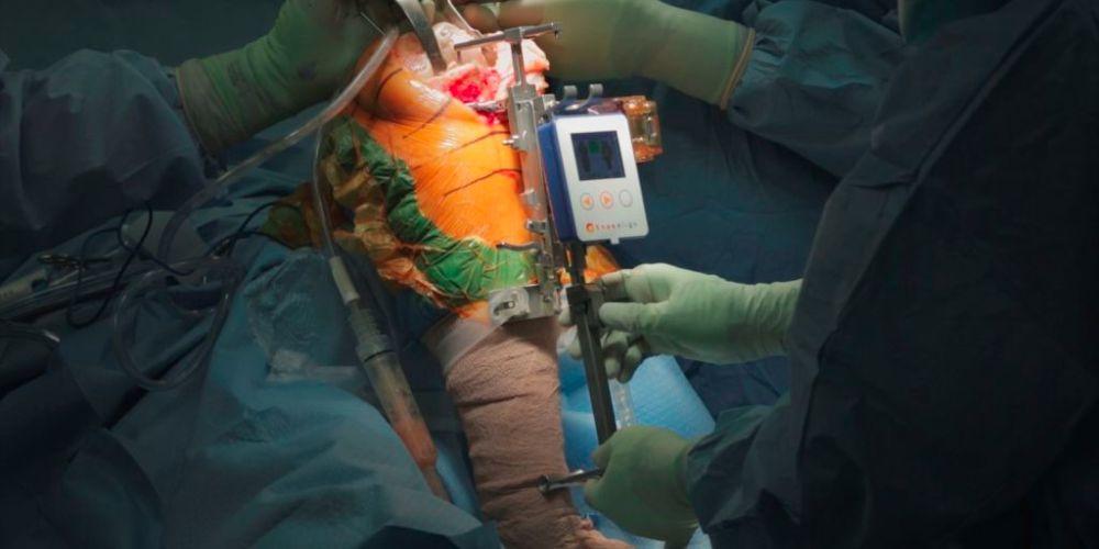 OrthAlign, Inc. Announces Milestone Achievement 60,000th Joint Arthroplasty Case