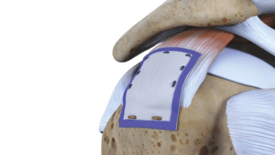 Photo of Rotation Medical Bioinductive Implant Induces New Tissue Formation in Patients with Large and Massive Rotator Cuff Tears