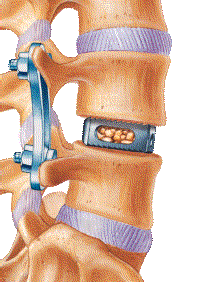 Lateral Lumbar Interbody Fusion Market: Emergence of Advanced Technologies and Future Outlook 2024