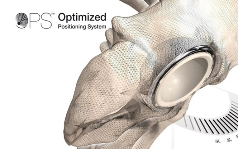 Corin Group Launches Optimized Positioning System (OPS™) for Hip Replacement at AAOS