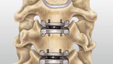 Photo of Medtronic, DePuy Synthes Lead Cervical and Lumbar Artificial Disc Market