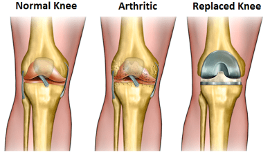 Photo of Researchers Find Knee Replacement Surgery May Have Minimal Effect on Quality of Life and Unattractive Economic Outcomes