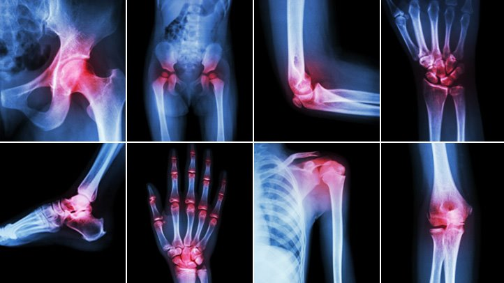 Extremity Reconstruction Market – Detailed Study Analysis and Forecast by 2025