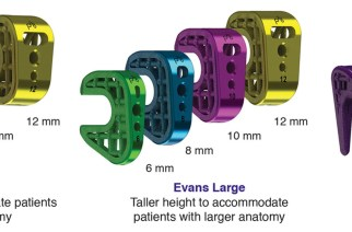Paragon 28 announces launch of 12 unique titanium wedges to address flatfoot deformities-TITAN 3-D™ Wedge System