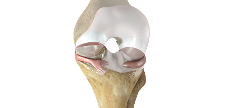 Advanced Orthopedics & Sports Medicine Specialists Performs First Meniscus Replacements in Colorado
