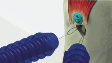 Ziptek LLC Receives FDA Approval For ZipE®, the Innovative Knotless Tissue Repair Device