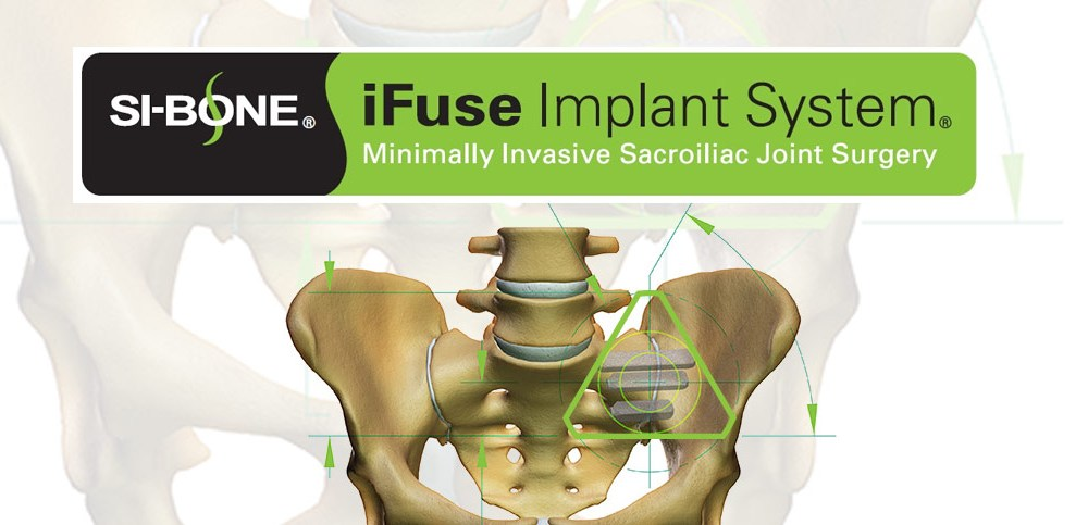 SI-BONE, Inc. Announces Published Guidance Recommendation for Minimally Invasive SI Joint Fusion from NICE