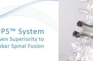 FDA approves IDE study for Premia Spine's TOPS™ System