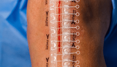 Photo of ZipLine® Medical Receives India Regulatory Approval for Non-Invasive Zip® Skin Closure System