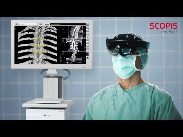 Scopis Introduces the First Mixed-Reality Surgical Holographic Navigation Platform Integrating Microsoft HoloLens