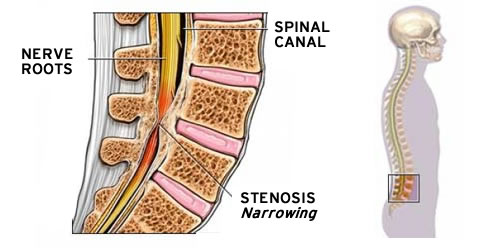 If You Have Lumbar Spinal Stenosis, There's an Exciting New Option |