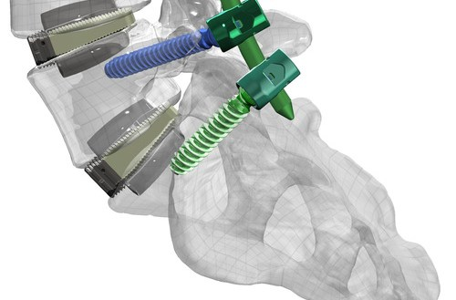 Camber Spine Technologies Announces Exceeding the 150th Implantation of ENZA™ Zero-Profile ALIF