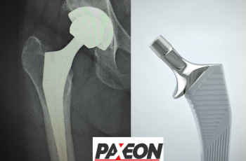 Paxeon Reconstruction Successfully Launches 135º Collared High Offset HA Hip Stem