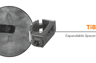 Life Spine Announces First Clinical Use of TiBOW™ MIS TLIF Expandable Spacer System
