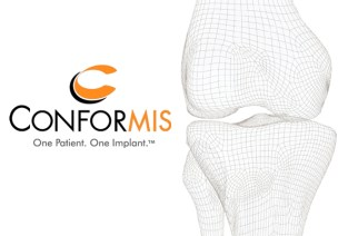 ConforMIS Reports Second Quarter 2017 Financial Results and Updates Fiscal Year 2017 Guidance