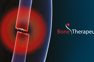 Bone Therapeutics SA : Announces all Patients Meet Primary Endpoint in ALLOB® Phase I/IIA Delayed-Union Study Interim Analysis