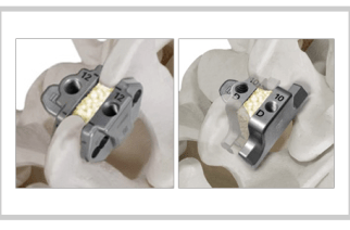"Southern Spine Announces ""Clinical and Biomechanical Advantages of Interspinous Process Fixation: A Review"""
