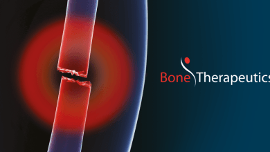 Photo of Bone Therapeutics SA completes patient recruitment for Phase IIA Spinal Fusion study with ALLOB®