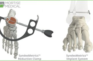 Mortise Medical Receives FDA Clearance for  SyndesMetrics Syndesmosis Repair System