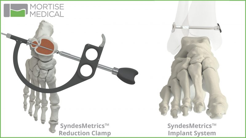 Mortise Medical Receives FDA Clearance for  SyndesMetrics Syndesmosis Repair System
