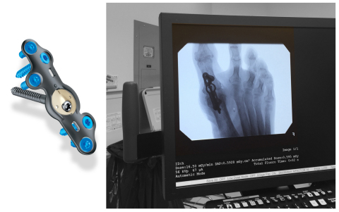 """In2Bones Announces FDA Clearance of the CoLink® View """"See-Through"""" Plating System"""