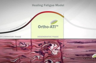 Orthocell Granted European Tendon Regeneration Patent