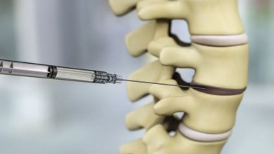 Photo of DiscGenics Announces First Patient Treated in U.S. Clinical Trial of IDCT for Degenerative Disc Disease