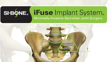 Photo of SI-BONE, Inc. Announces Publication of 3-Year Long-term Prospective Outcomes Including Randomized Controlled Trial Data Post SI Joint Fusion with Triangular iFuse Implant System®