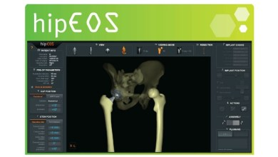 Photo of EOS imaging to Present Its EOSapps Suite at the French Society of Orthopedic and Traumatological Surgery Congress (SOFCOT)