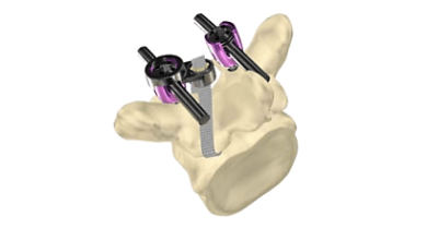 Photo of IMPLANET: CE Mark Clearance for the Jazz Cap System®, a Screw Securing Solution for Vertebral Fusion