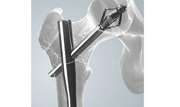 Photo of Largest Ever Clinical Trial in Hip Fracture Fixation Completes One-Year Follow-Up in 1000th Patient