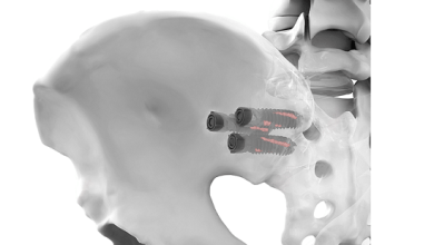 Photo of Life Spine Announces Initiation of SIMPACT® Sacroiliac Joint Fixation Outcomes Study
