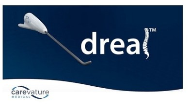 Photo of Carevature Marks 1,000th Procedure Using Dreal® Decompression Platform to Reduce Trauma in Spinal Surgery