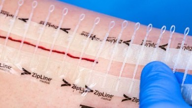Photo of ZipLine Medical Announces New Emergency Department Study Showing Significant Time and Cost Savings with Laceration Closure Using Zip® Surgical Skin Closure