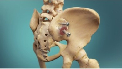Photo of RTI Surgical® Applauds Blue Cross and Blue Shield of Alabama's Positive Coverage Decision for Minimally Invasive Sacroiliac Joint Fusion Surgery