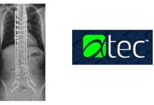 Xtant™ Medical Announces the Operations Expansion of