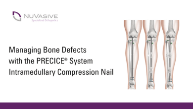 Photo of NuVasive Specialized Orthopedics Reaches 10,000 Nail Implant Milestone of the Precice® System for Limb Lengthening