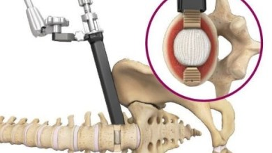 Photo of Spineology Announces Duo™ Angled Instrumentation System