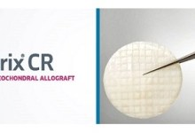 Photo of Research Shows ProChondrix® CR Maintains Consistent, High Cell Viability For Two Years
